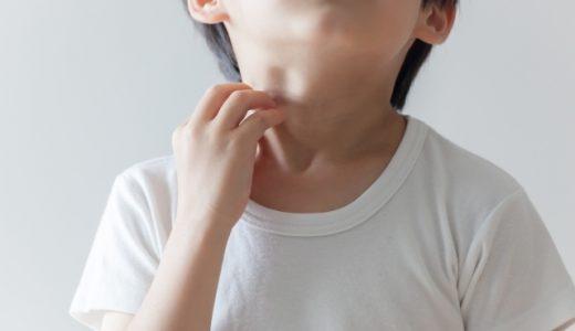 山芋を食べた子供に異変が。。山芋アレルギーに注意!重度の場合は命の危険も